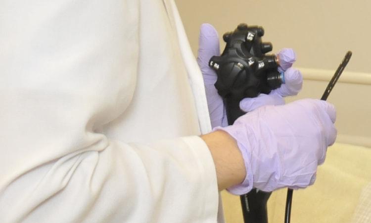 内視鏡検査のイメージ写真